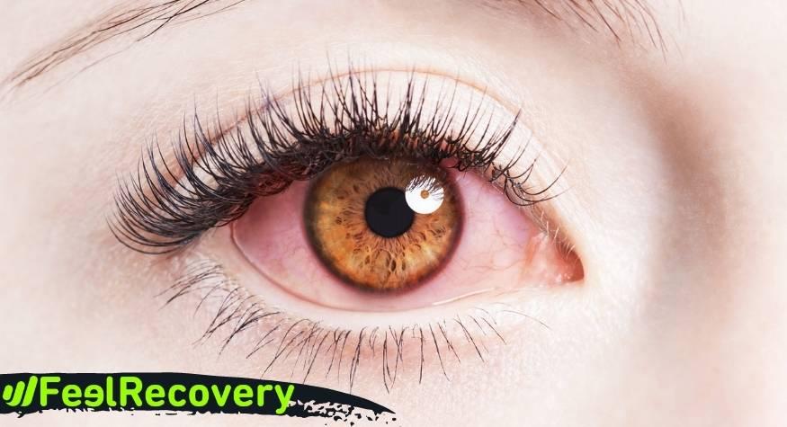 ¿Cuáles son las causas y origen del picor e inflamación de los ojos por blefaritis?