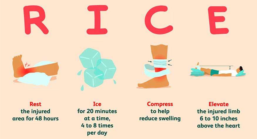 Infografia metodo RICE