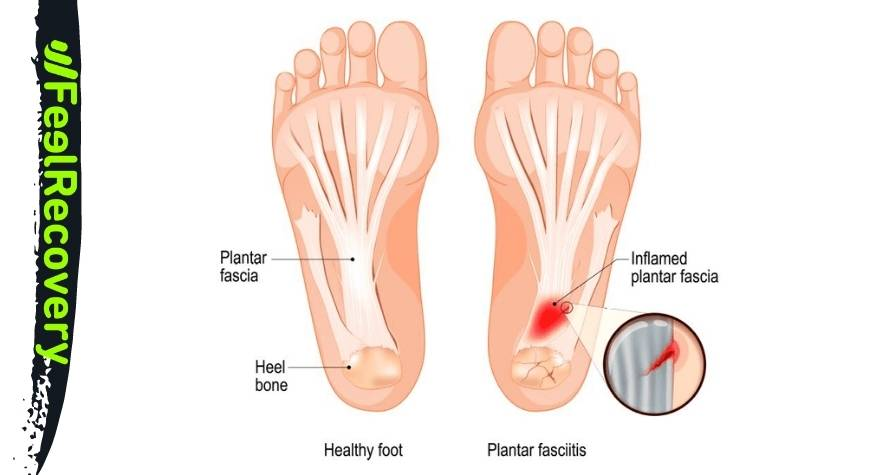 What is plantar fasciitis and what are the causes of this ailment on the soles of the feet?